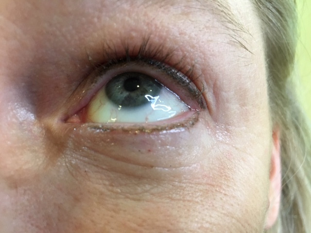 2. Eye Enhancement in the lash line