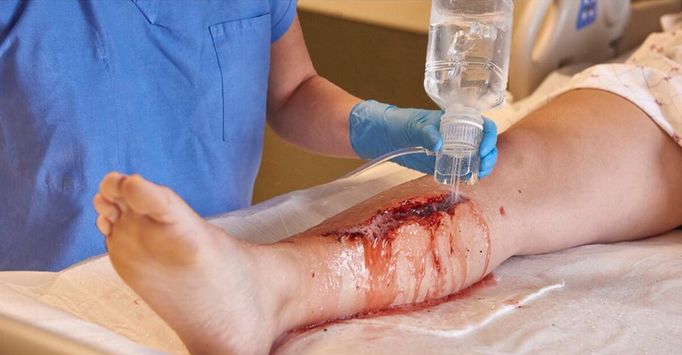 Wound Irrigation Simulation Centurion Medical Products
