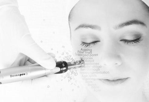 Dermapen-Skin-Needling-Perth-2_edited_ed