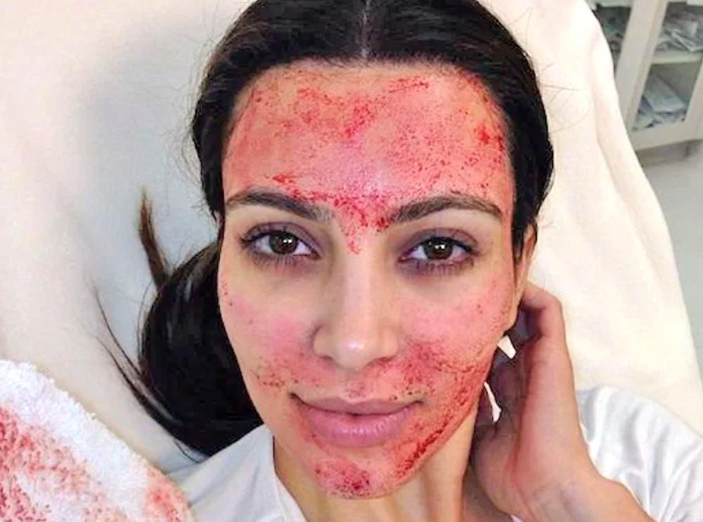 Kim Kardashian Vampirelifting