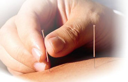 Medical Acupuncture in Chigwell