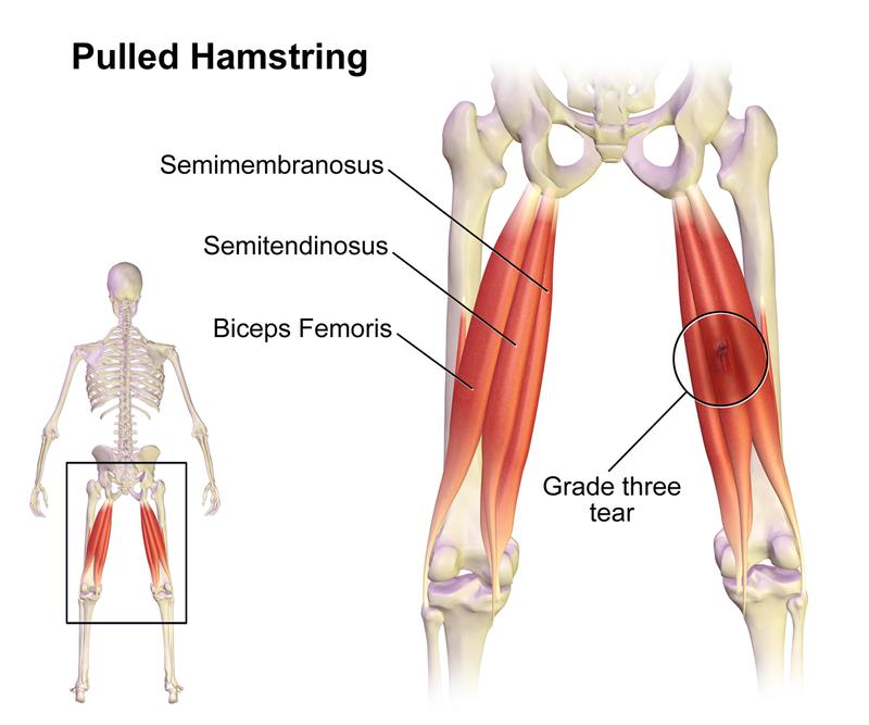 Hamsting anatomy. Grade 3 hamstring tear
