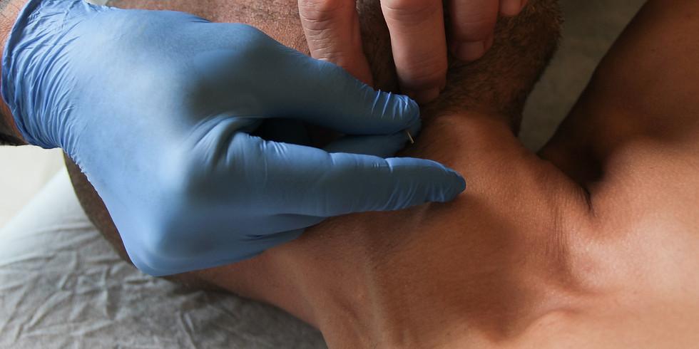 סדנא מעשית בנושא:  טיפול בכאבי ראש וצוואר בעזרת דיקור יבש ונקודות טריגר מיועד לבוגרי דיקור יבש
