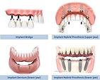 types-of-implants.jpg