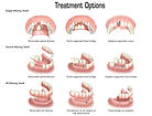 treatment options.jpg