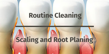 Scaling / Root Planing