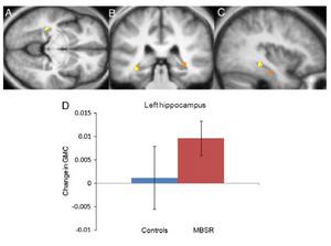 Graue Substanz Hippocampus wächst durch Meditation