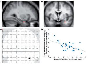 Amygdala verkleinert sich durch Meditation