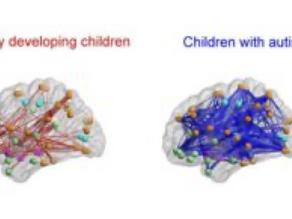 Understanding neurodiversity