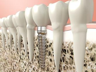 インプラント治療の最大の利点は、 自分の歯を守ること