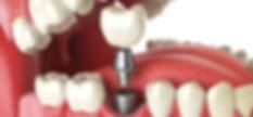これ以上歯を失わないために  自分の歯を守るインプラント