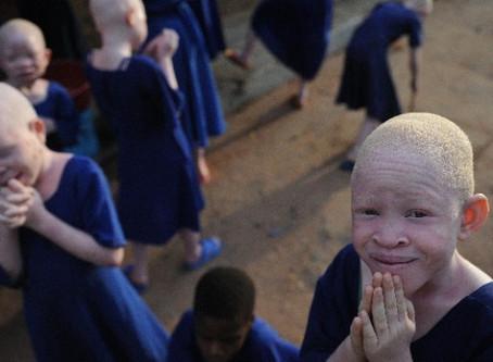 Ikweli | Assassinatos de pessoas com albinismo em Nampula