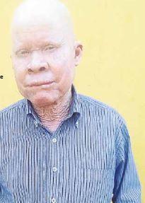 O País | Associação quer matéria sobre o albinismo nos manuais escolares para combater discriminação