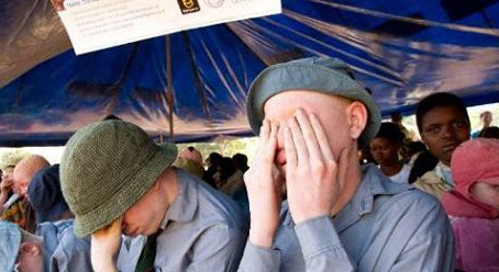 The Maravi Post | Man arrested for posting 'Albino For Sale' message on Facebook
