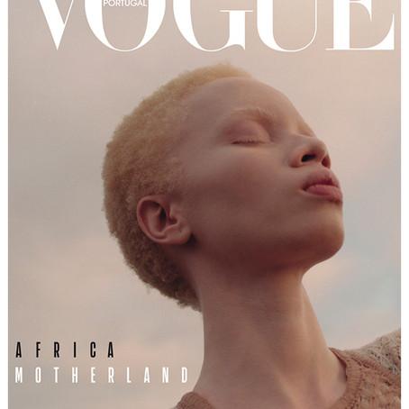 Vougue Portugal | Modelo com albinismo Thando Hopa