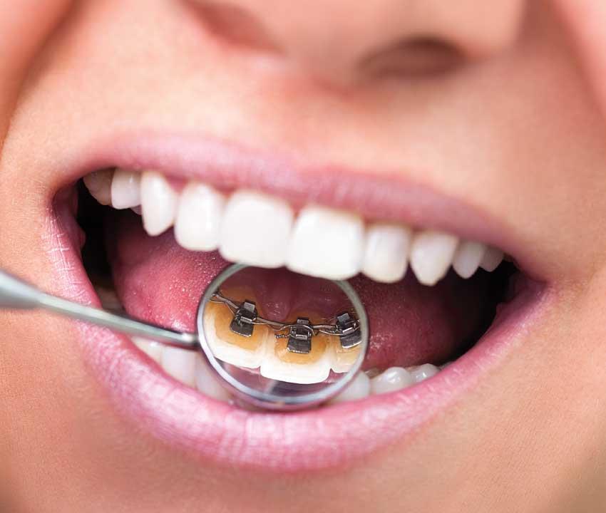 تقويم الأسنان المخفي