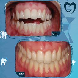 تقويم الأسنان قبل وبعد
