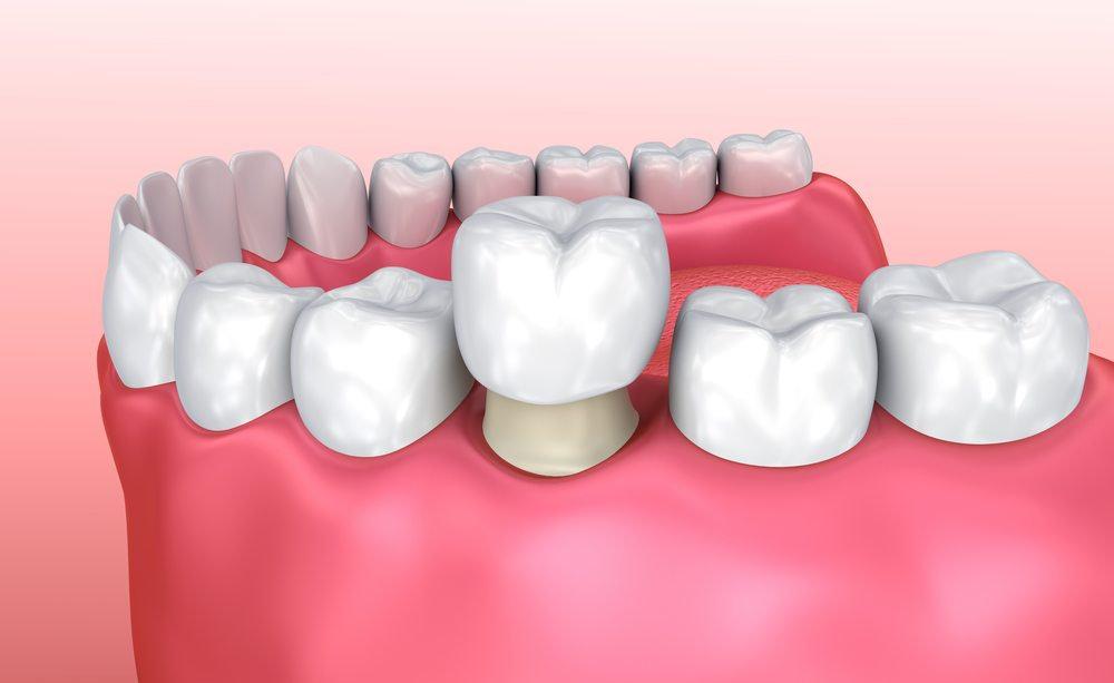 تيجان الأسنان