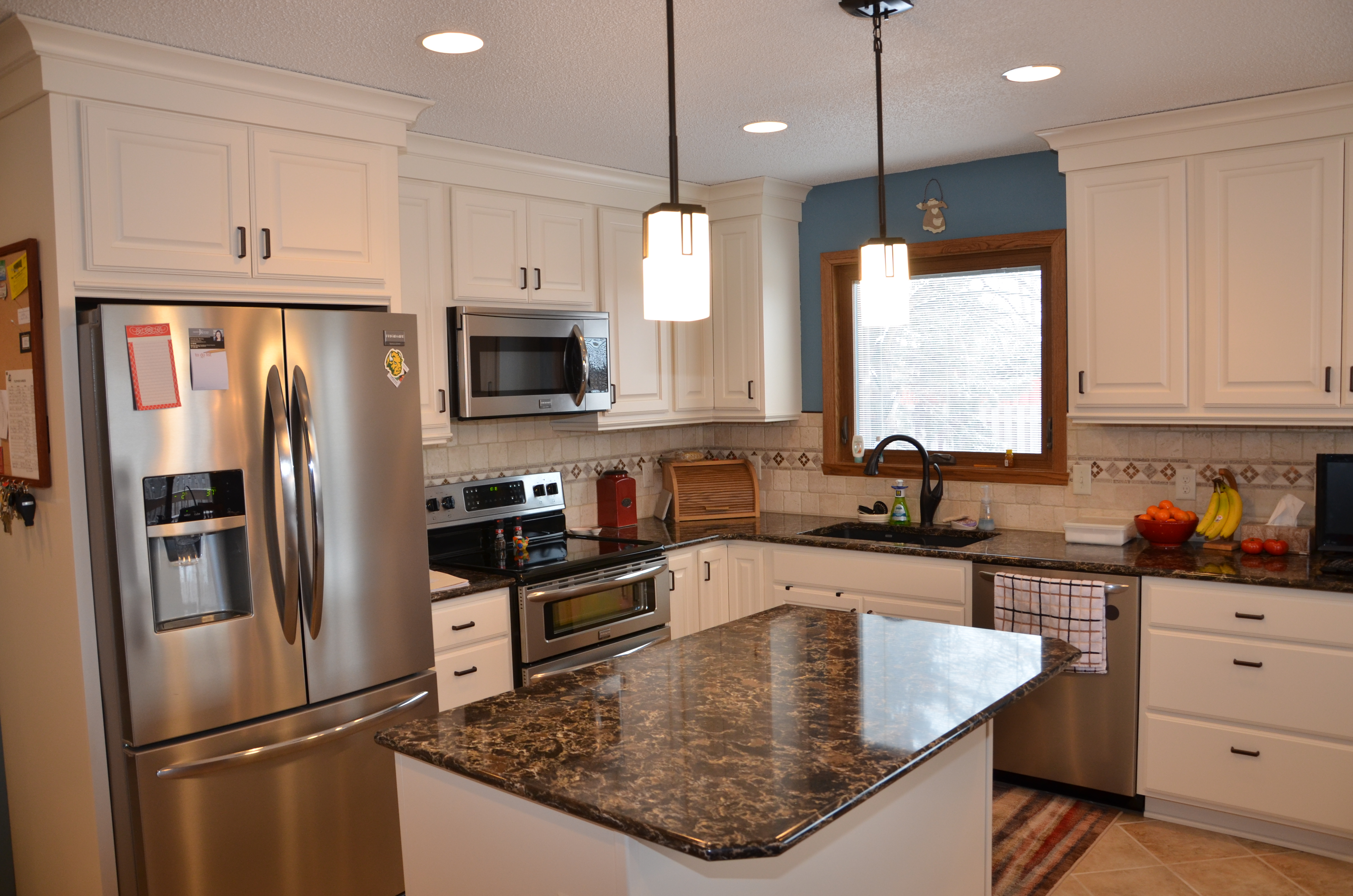 25 1/2 Ave. S, Fargo | Home Remodeling Contractors Fargo, ND ...