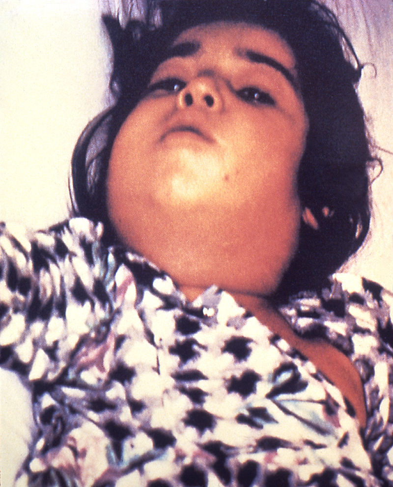 "Diphtheria induces swelling of the neck, called the ""Bull's neck"""