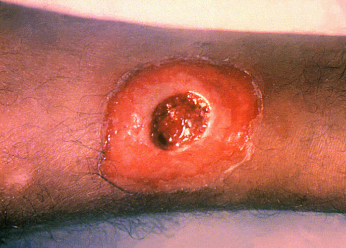 skin ulcer on the leg of diphtheria infected person