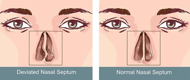illustration deviated nasal septum.png