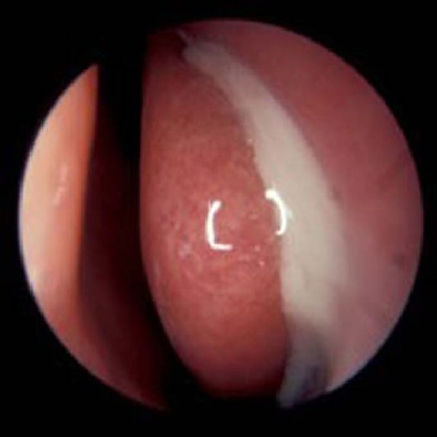 Endoscopic view of left nose showing acute sinusitis condition.