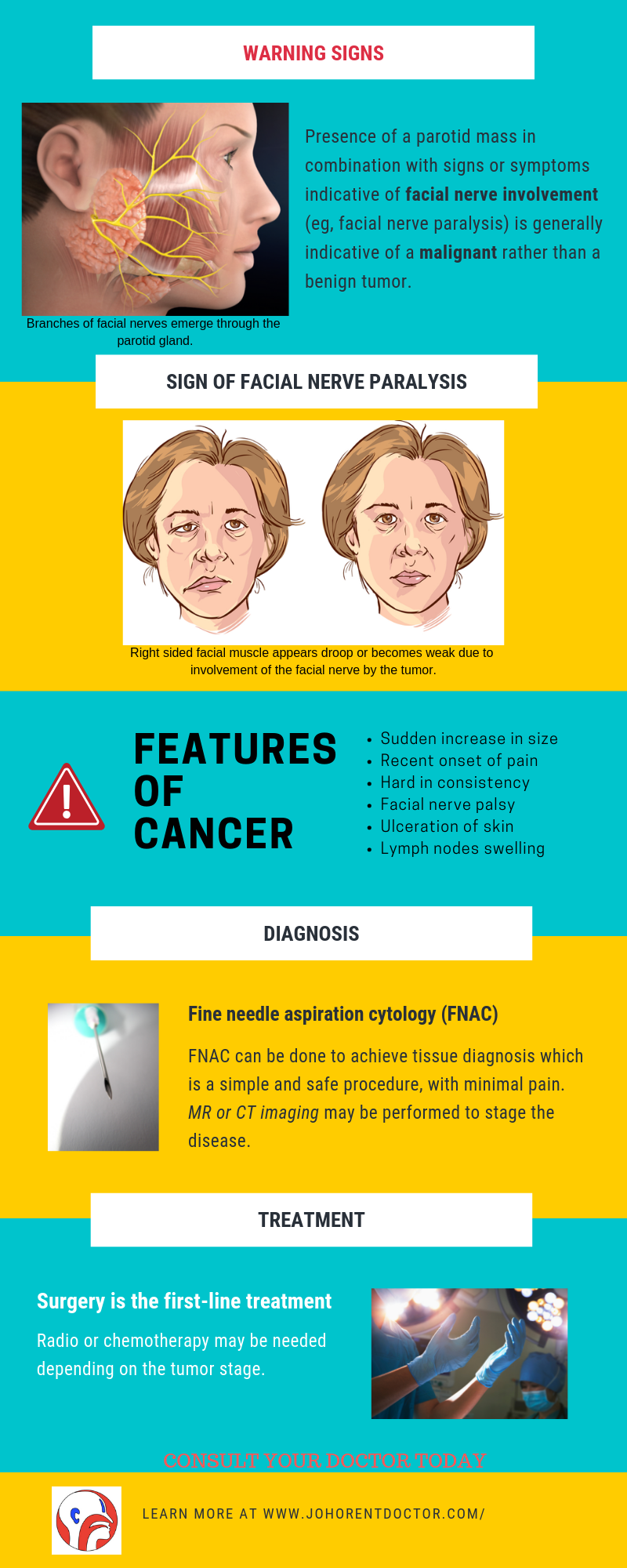 diagnosis and treatment of salivary gland tumor