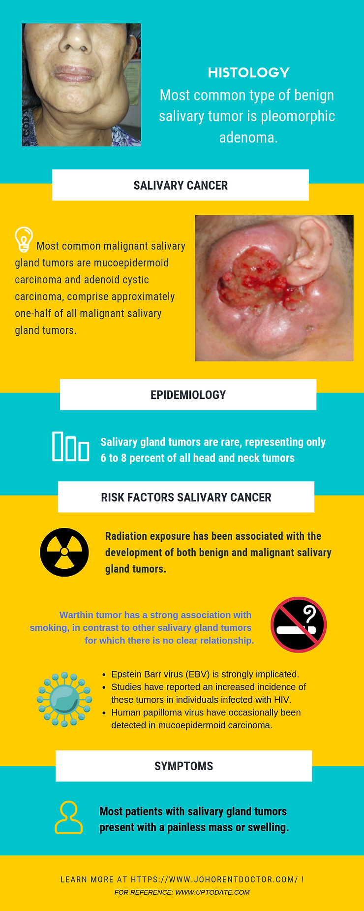 epidemiology, histology types, signs and symptoms of salivary gland tumors
