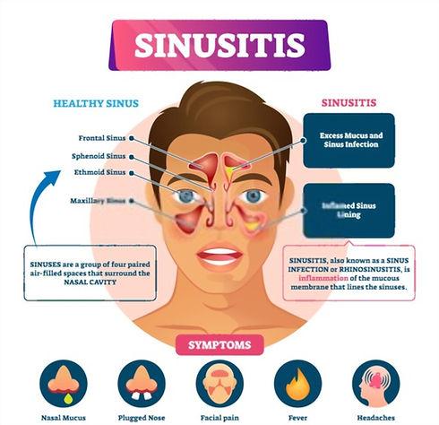 sinusitis 2.jpg