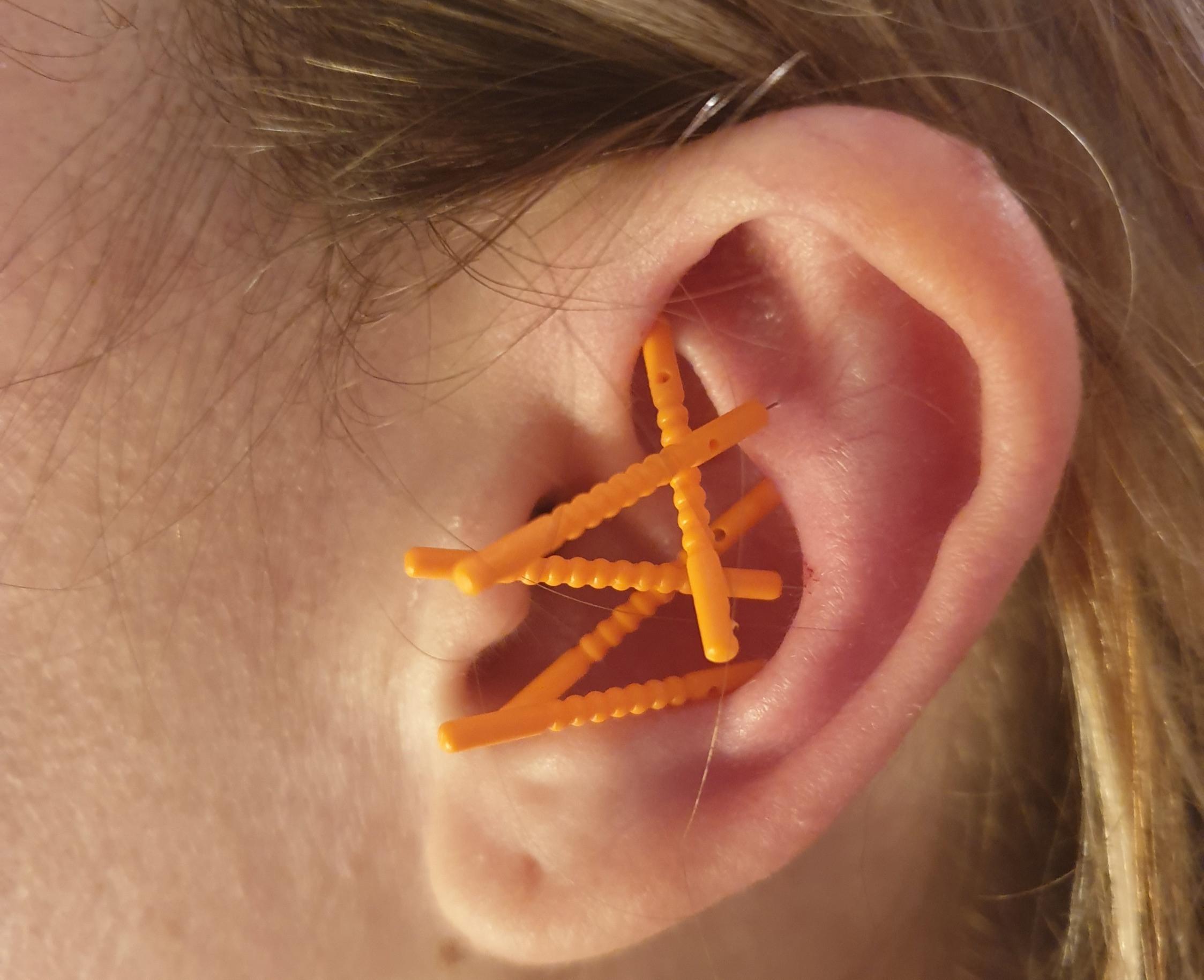 Auricular Acupuncture - 1st Consultation