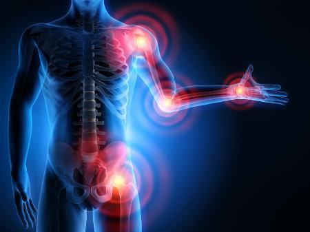 ARTRITE REUMATOIDE OU OSTEOARTRITE - Causas, tipos, sintomas e tratamentos