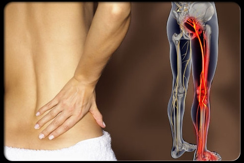 DOR NO CIÁTICO - Como tratar e acabar com a dor?