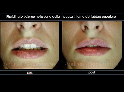 Labbra Acido Ialuronico