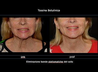 Botulino, Tossina Botulinica, Botox