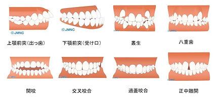 不正咬合(上顎前突(出っ歯)、下顎前突(受け口)、叢生、八重歯、開咬、交叉咬合、過蓋咬合、正中離開
