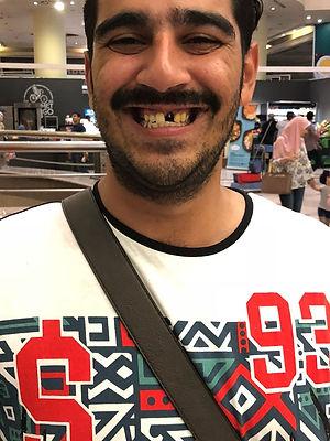 زراعه الاسنان الفوريه.jpeg