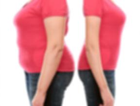 شفط الدهون.jpg