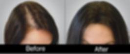 حالات زراعه شعر قبل وبعد