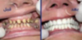 حالات زراعه الاسنان قبل وبعد