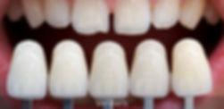 فينير الاسنان.jpg