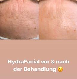 HydraFacial5.jpg