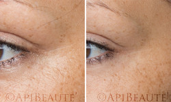 ApiBeaute' BEFORE AND AFTER