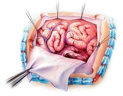 Brain tumor removal