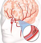 brain-blood-clot-warning-signs.jpg