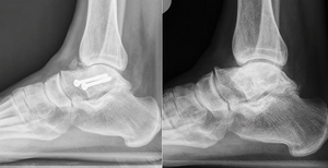 Before and after ankle x-rays (ankle distraction)