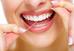 Você sabe a importância do fio dental na higiene bucal?