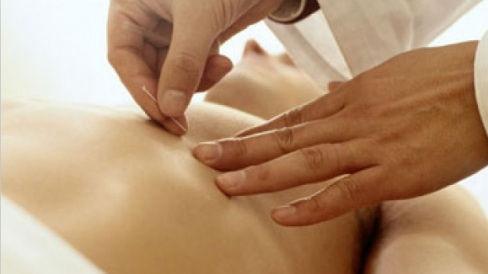 Curso de Acupunctura