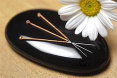 5 Myths About Acupuncture