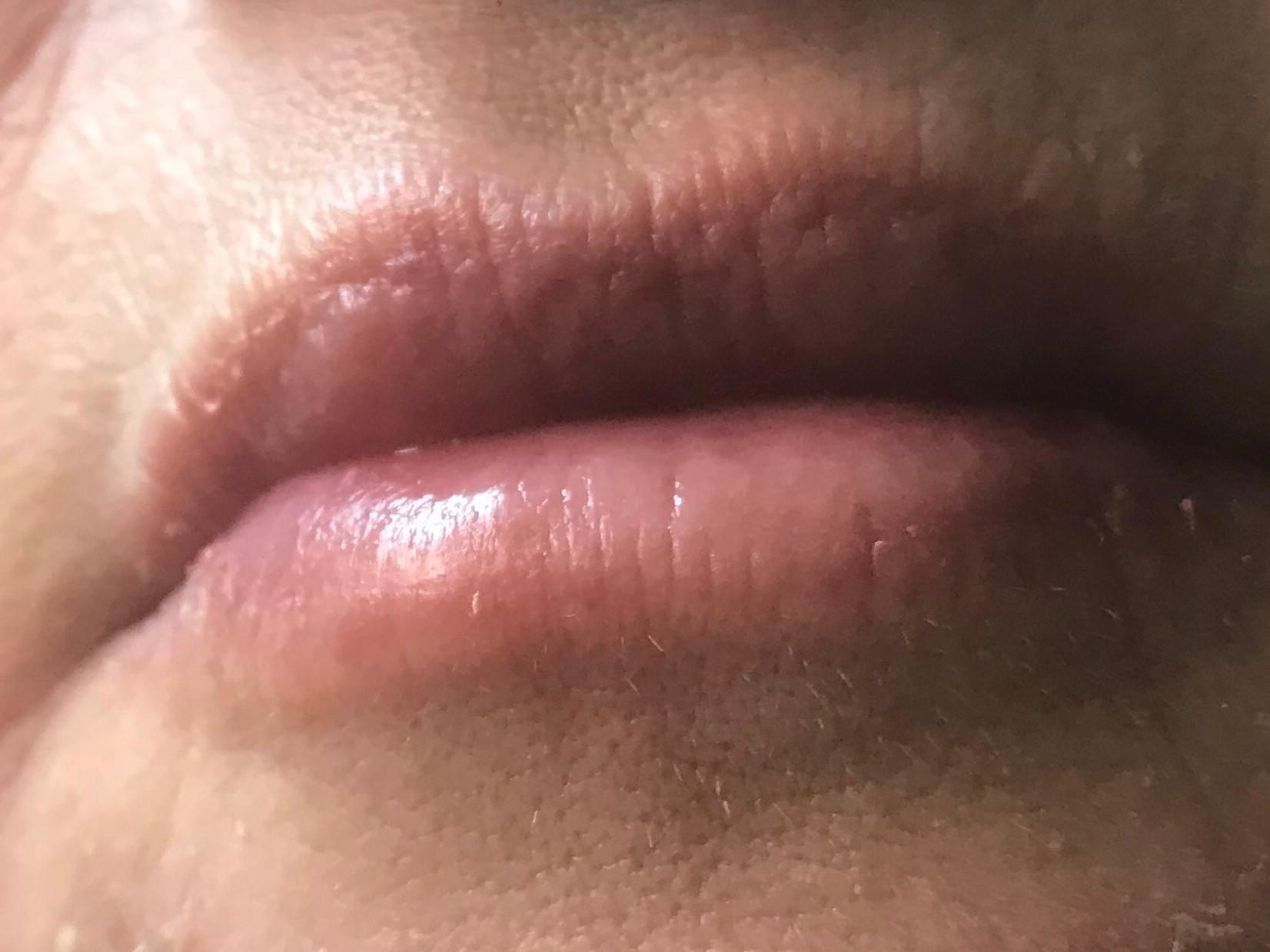 Luscious Lip Treatment